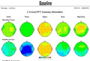 Sound healing brain map